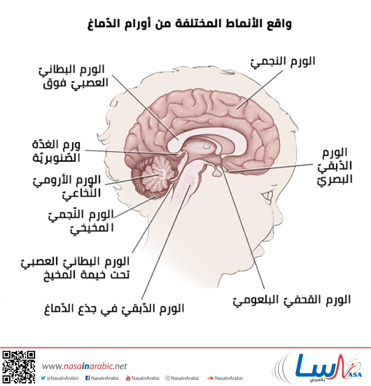 أنماط ومواقع أورام الدماغ