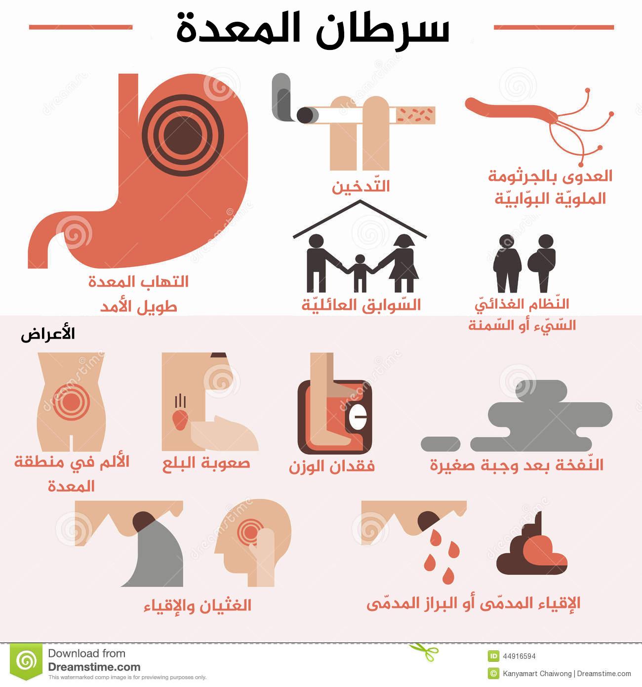 سرطان المعدة