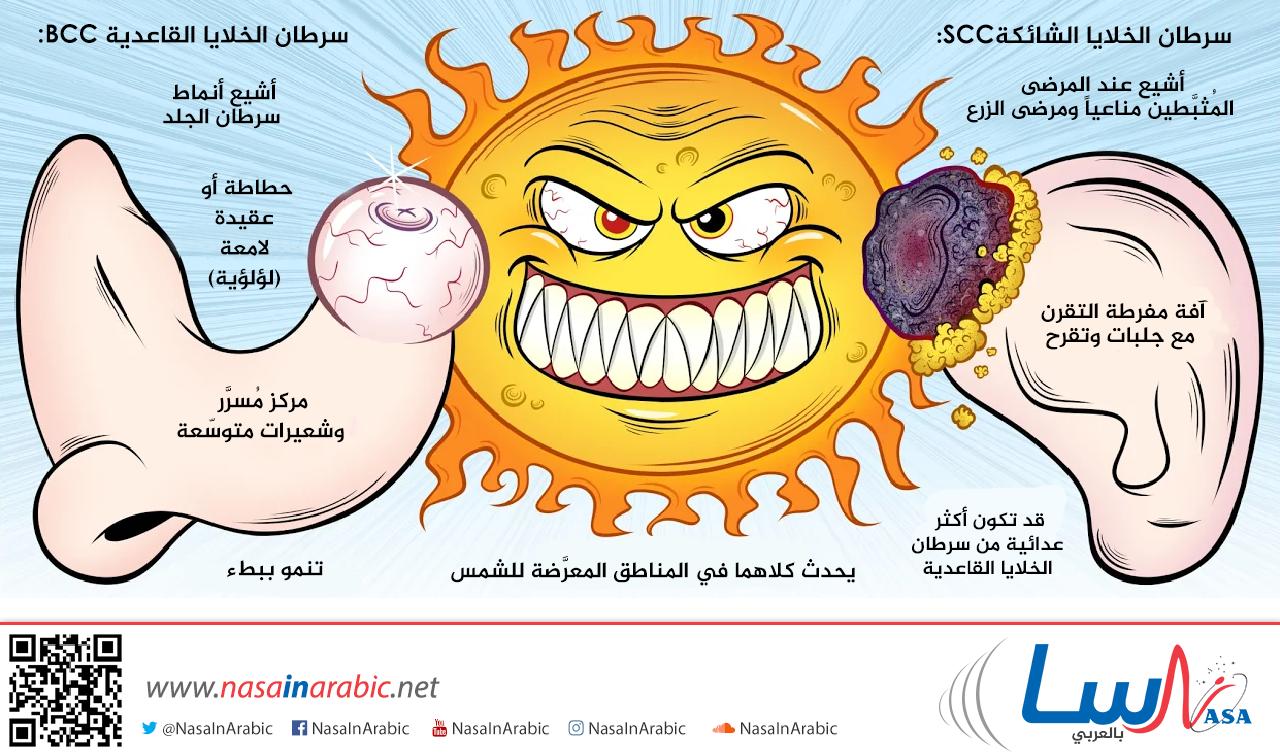 كارسينوما الخلايا القاعدية-كارسينوما الخلايا الشائكة