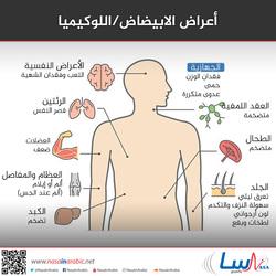 أعراض الابيضاض/اللوكيميا