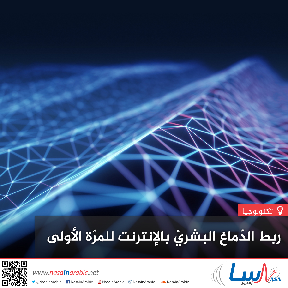 ربط الدّماغ البشريّ بالإنترنت للمرّة الأولى