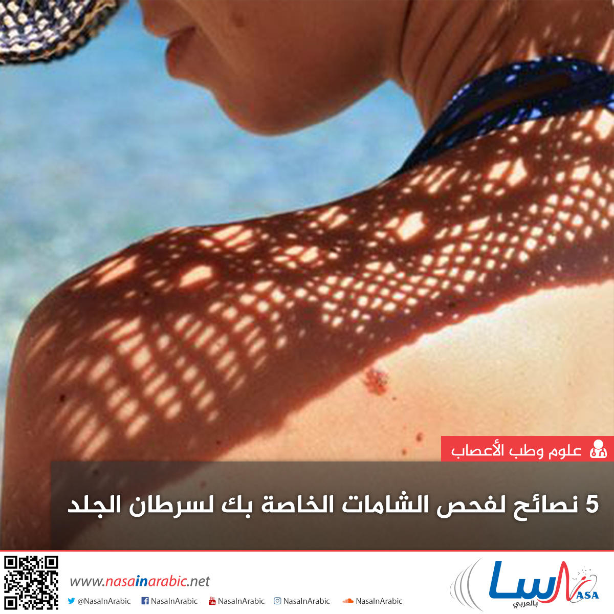 5 نصائح لفحص الشامات الخاصة بك لسرطان الجلد