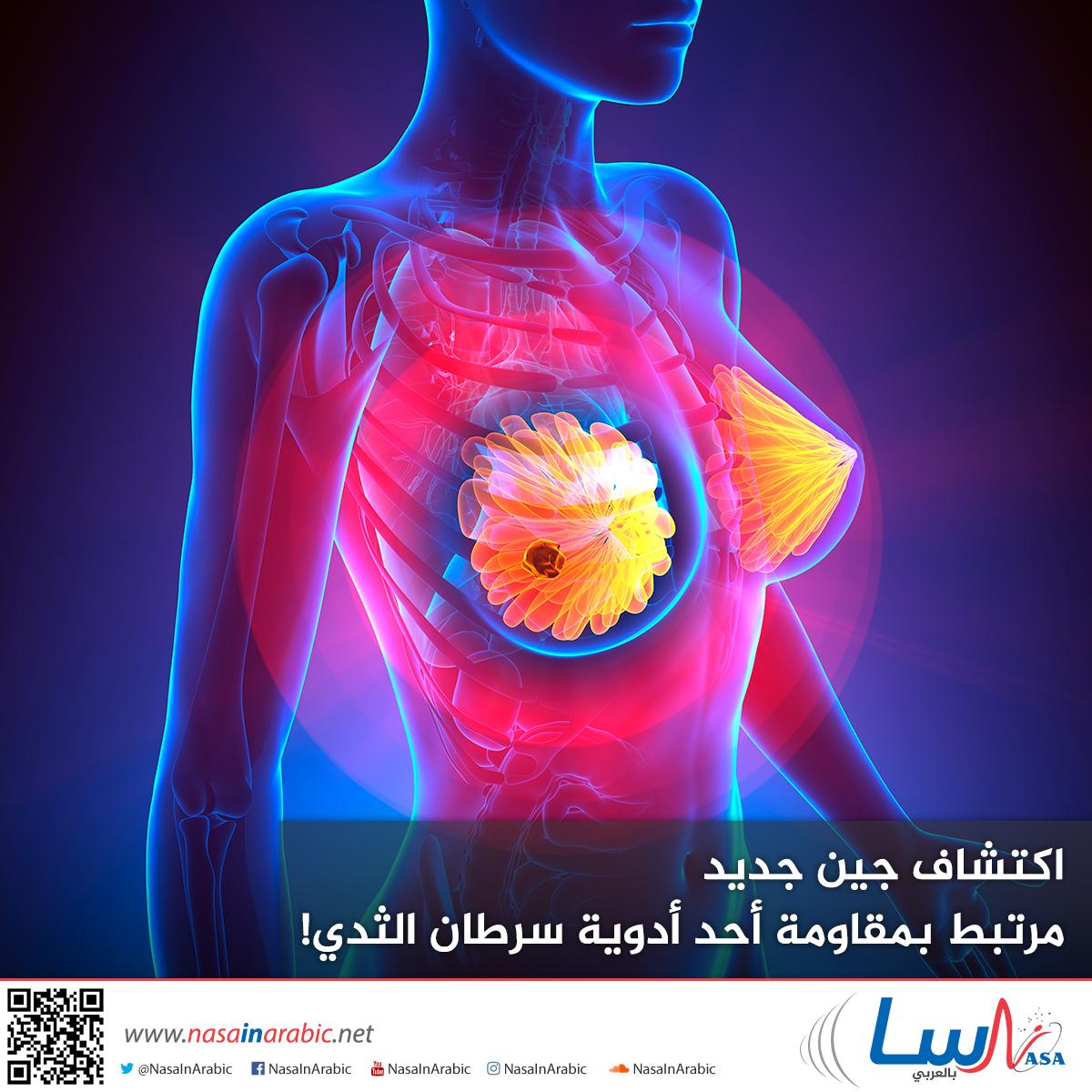 اكتشاف جين جديد مرتبط بمقاومة أحد أدوية سرطان الثدي!