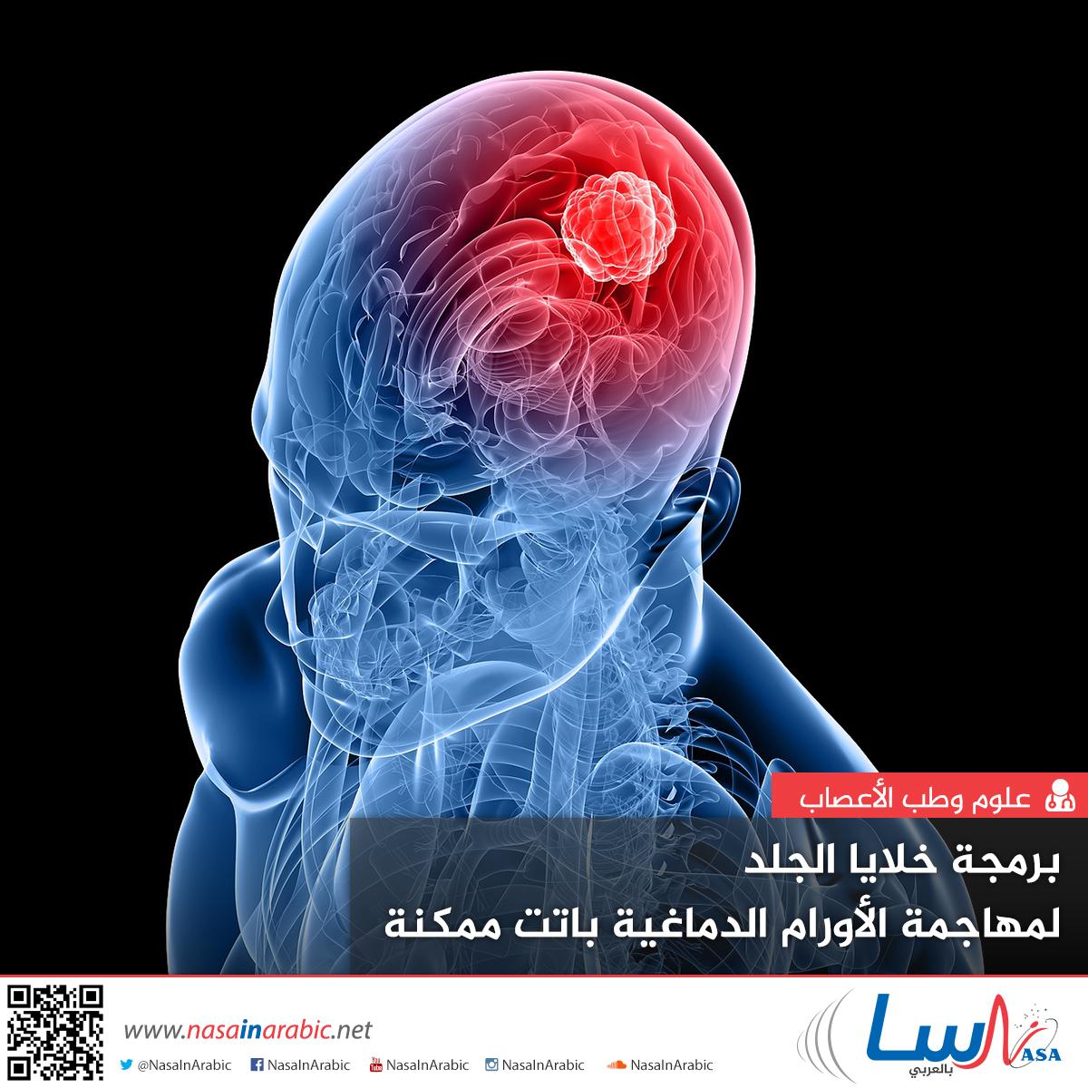 برمجة خلايا الجلد لمهاجمة الأورام الدماغية باتت ممكنة