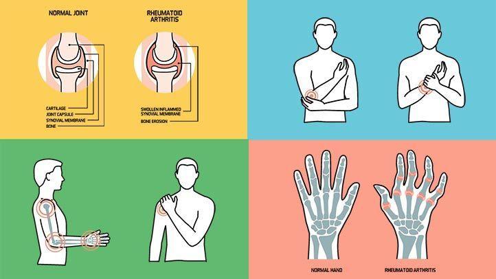 ما هو التهاب المفاصل الروماتويدي؟ الأعراض والأسباب والتشخيص والعلاج والوقاية
