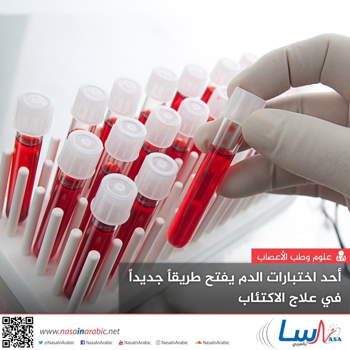 أحد اختبارات الدم يفتح طريقاً جديداً في علاج الاكتئاب