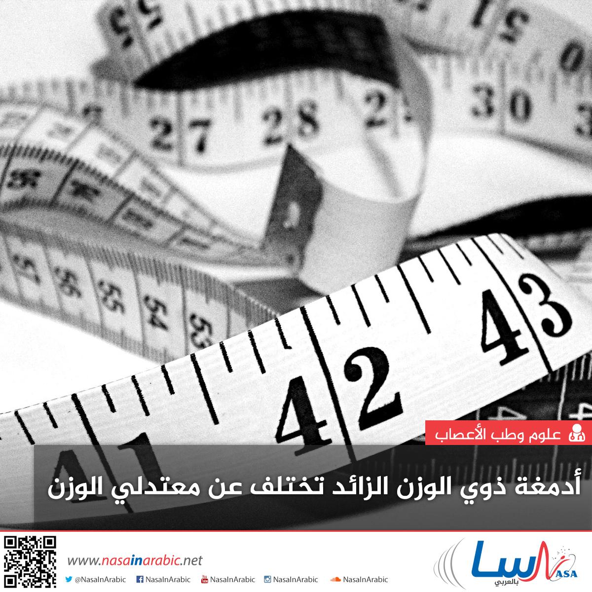 أدمغة ذوي الوزن الزائد تختلف عن معتدلي الوزن