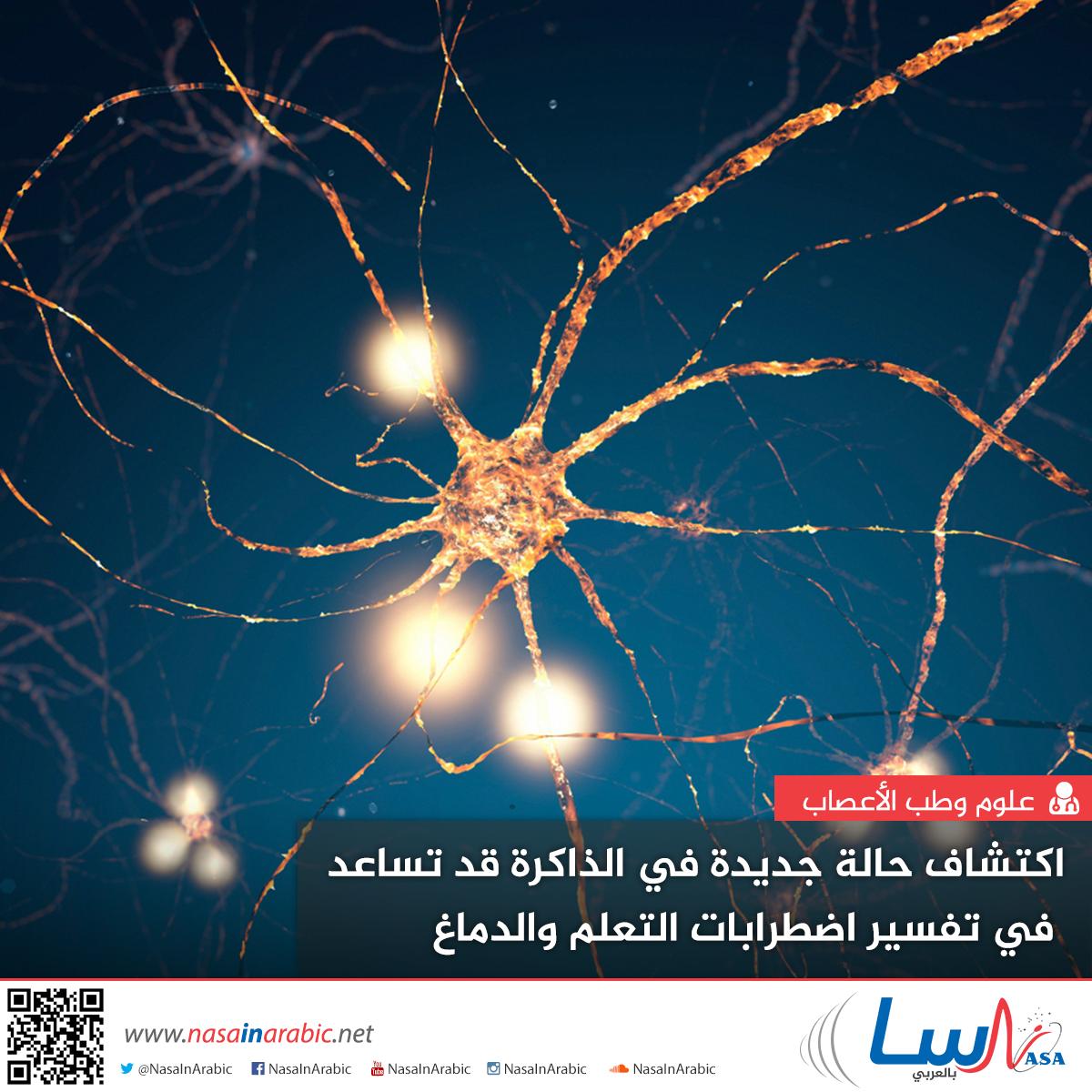 اكتشاف حالة جديدة في الذاكرة قد تساعد في تفسير اضطرابات التعلم والدماغ