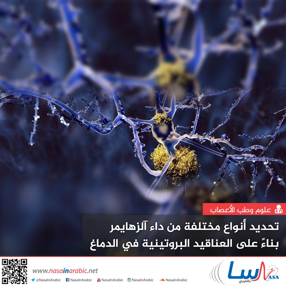 تحديد أنواع مختلفة من داء آلزهايمر بناءً على العناقيد البروتينية في الدماغ