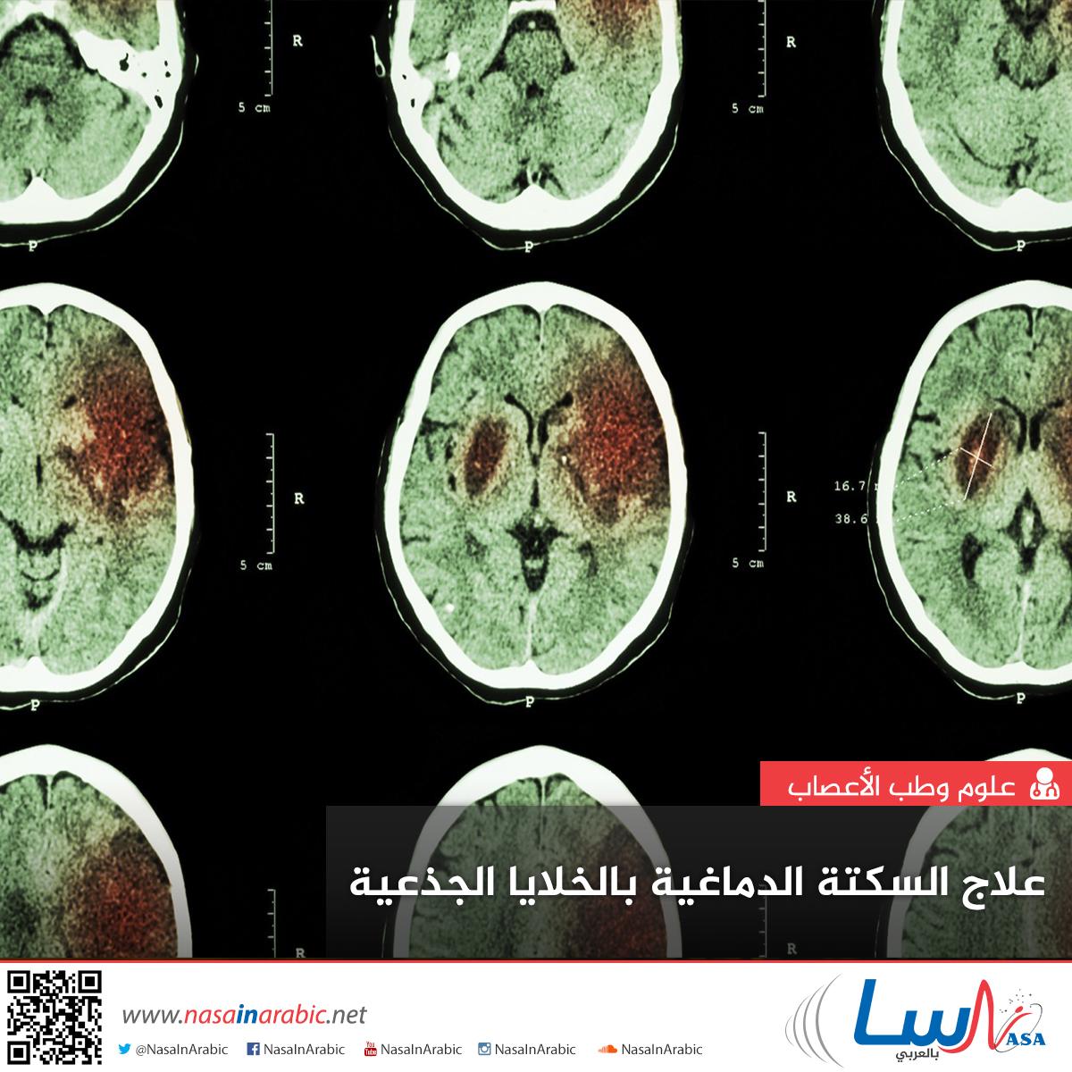 علاج السكتة الدماغية بالخلايا الجذعية
