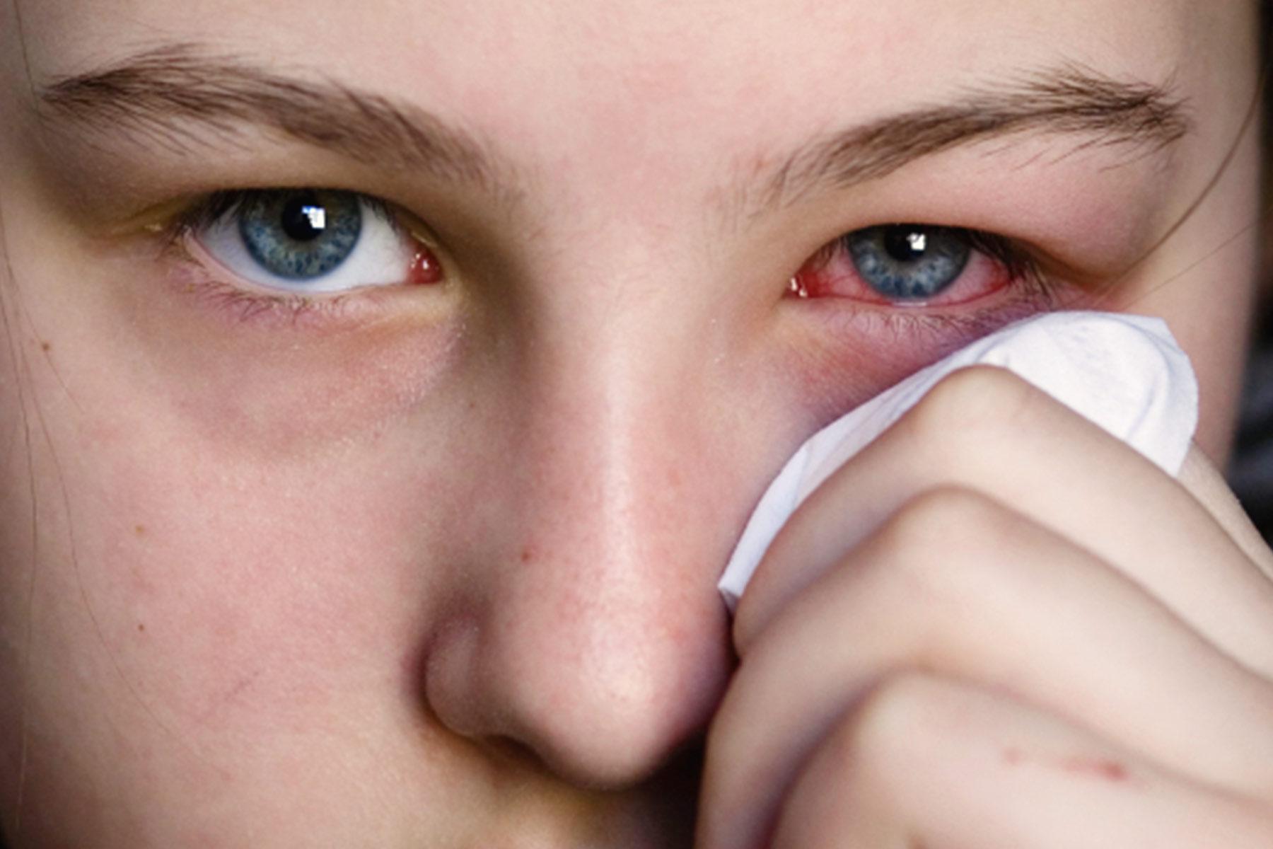 أمراض العين الشائعة..كيف تحافظ على صحة وسلامة عينيك؟