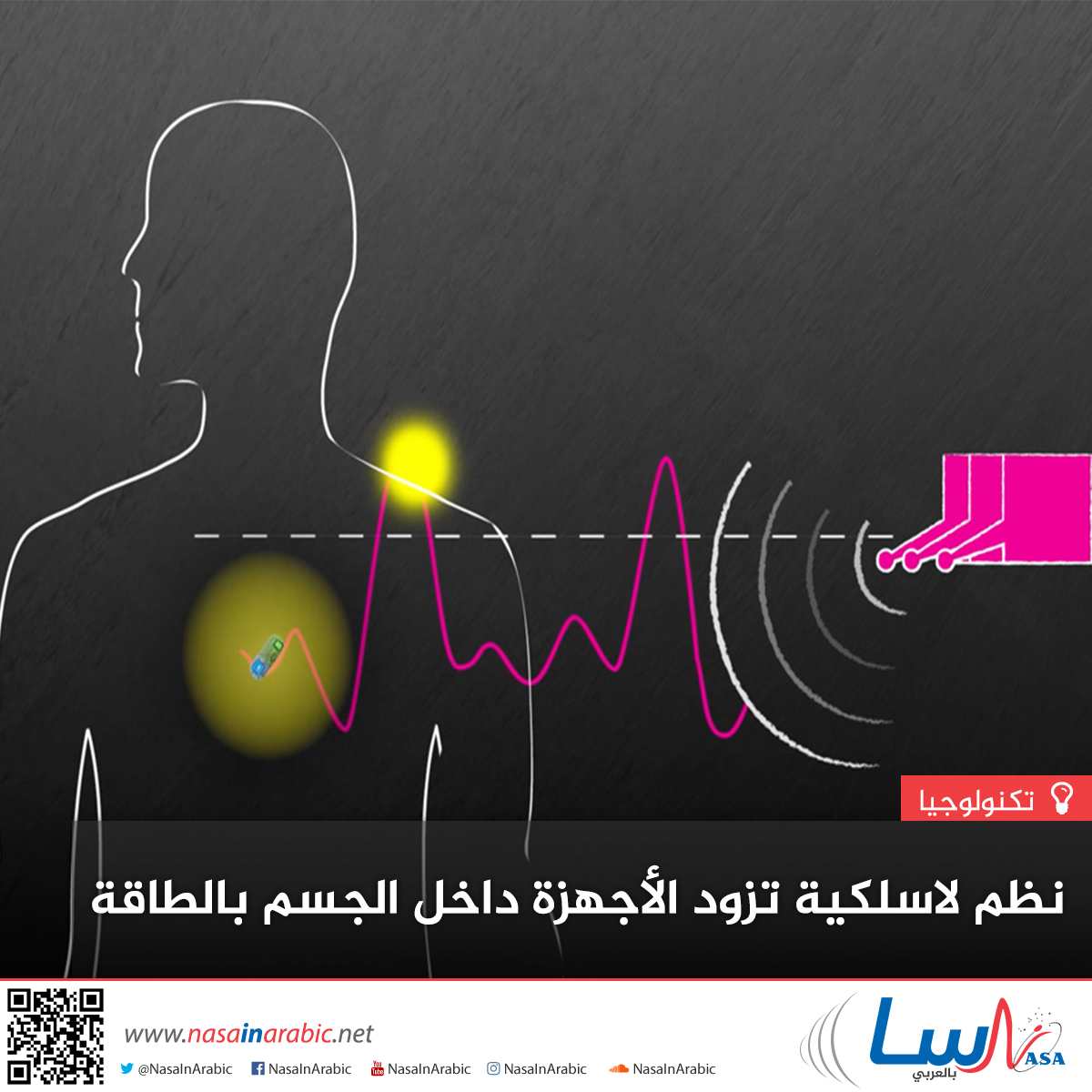 نظم لاسلكية تزود الأجهزة داخل الجسم بالطاقة