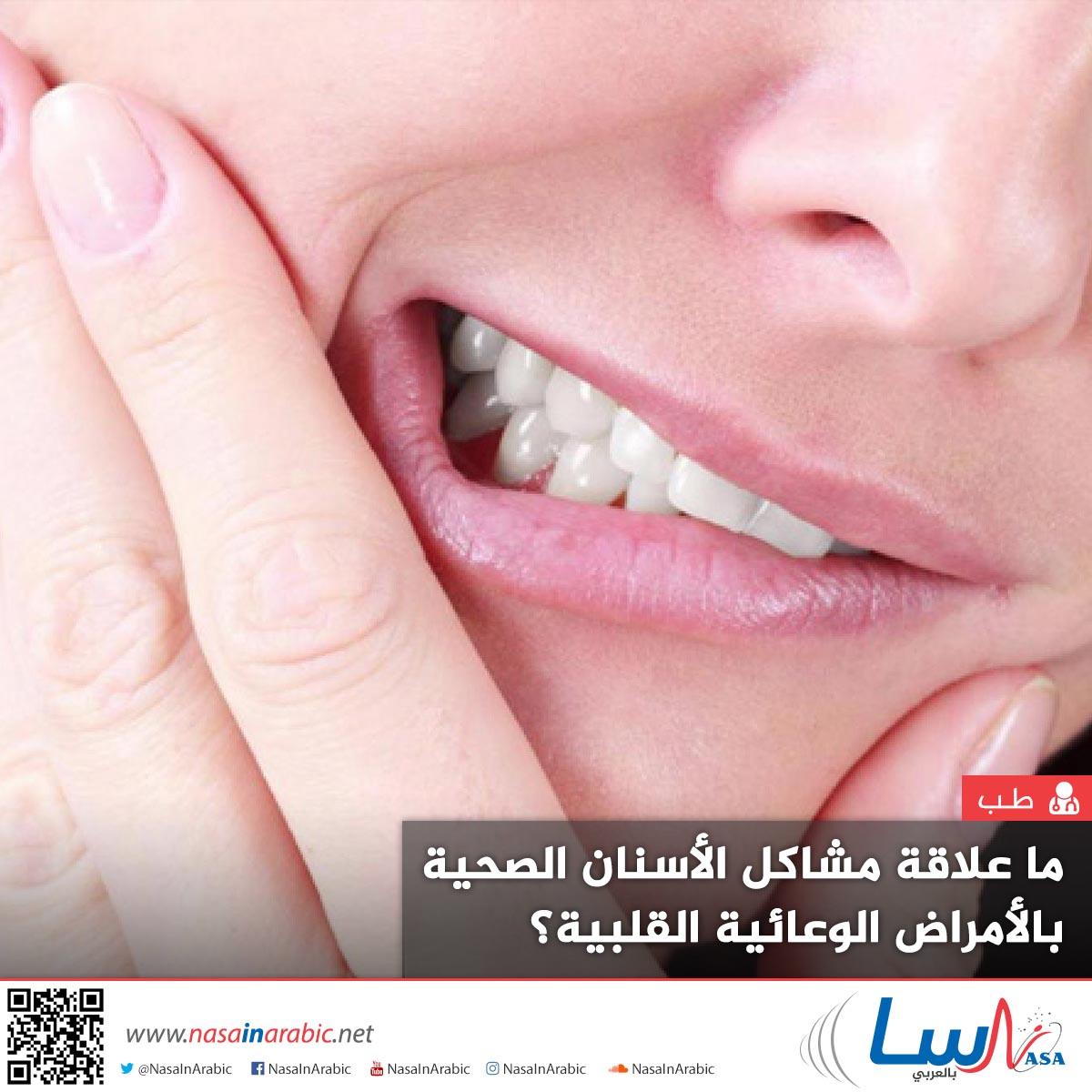 ما علاقة مشاكل الأسنان الصحية بالأمراض الوعائية القلبية؟