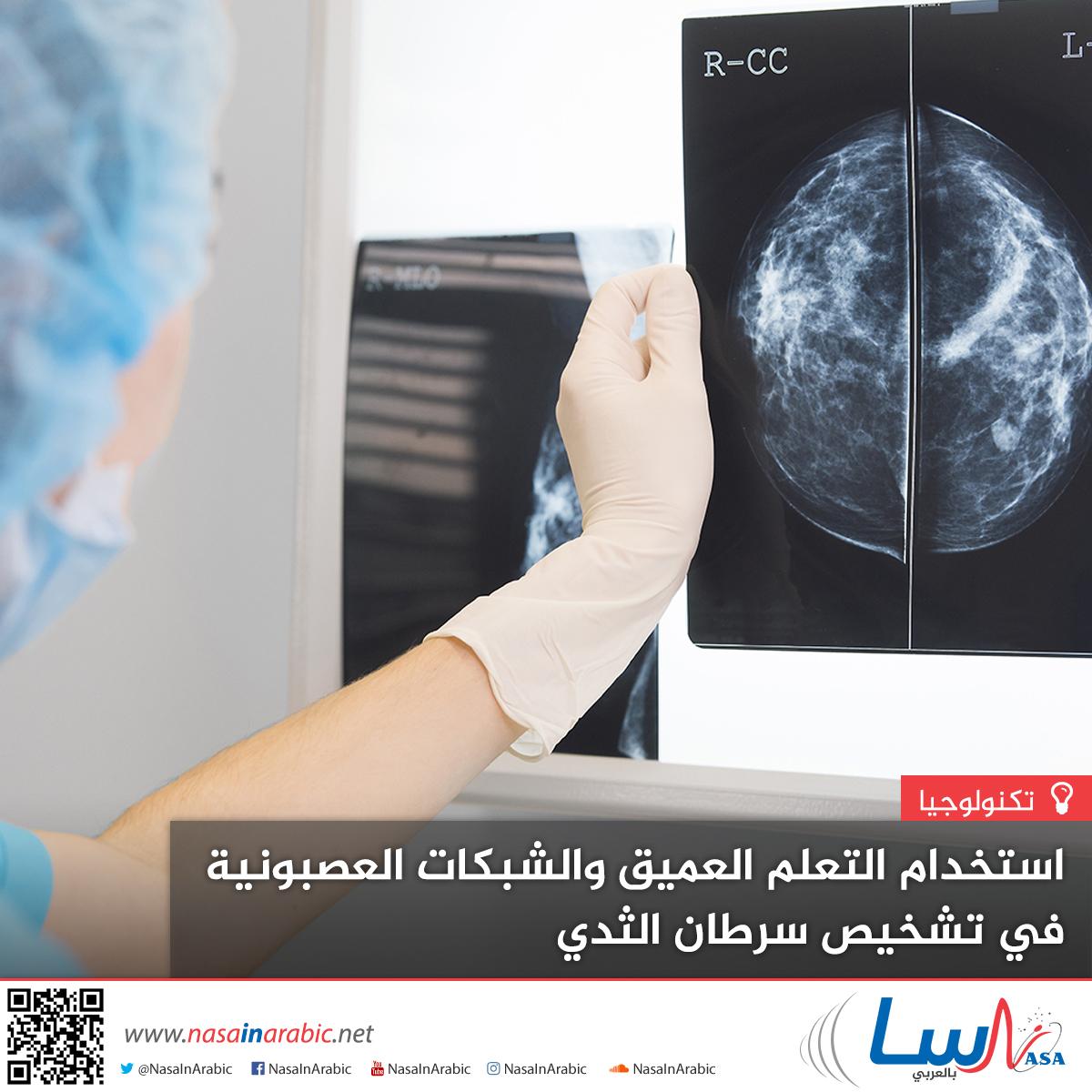 استخدام التعلم العميق والشبكات العصبونية في تشخيص سرطان الثدي