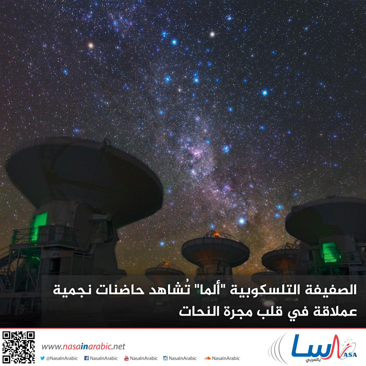 الصفيفة التلسكوبية