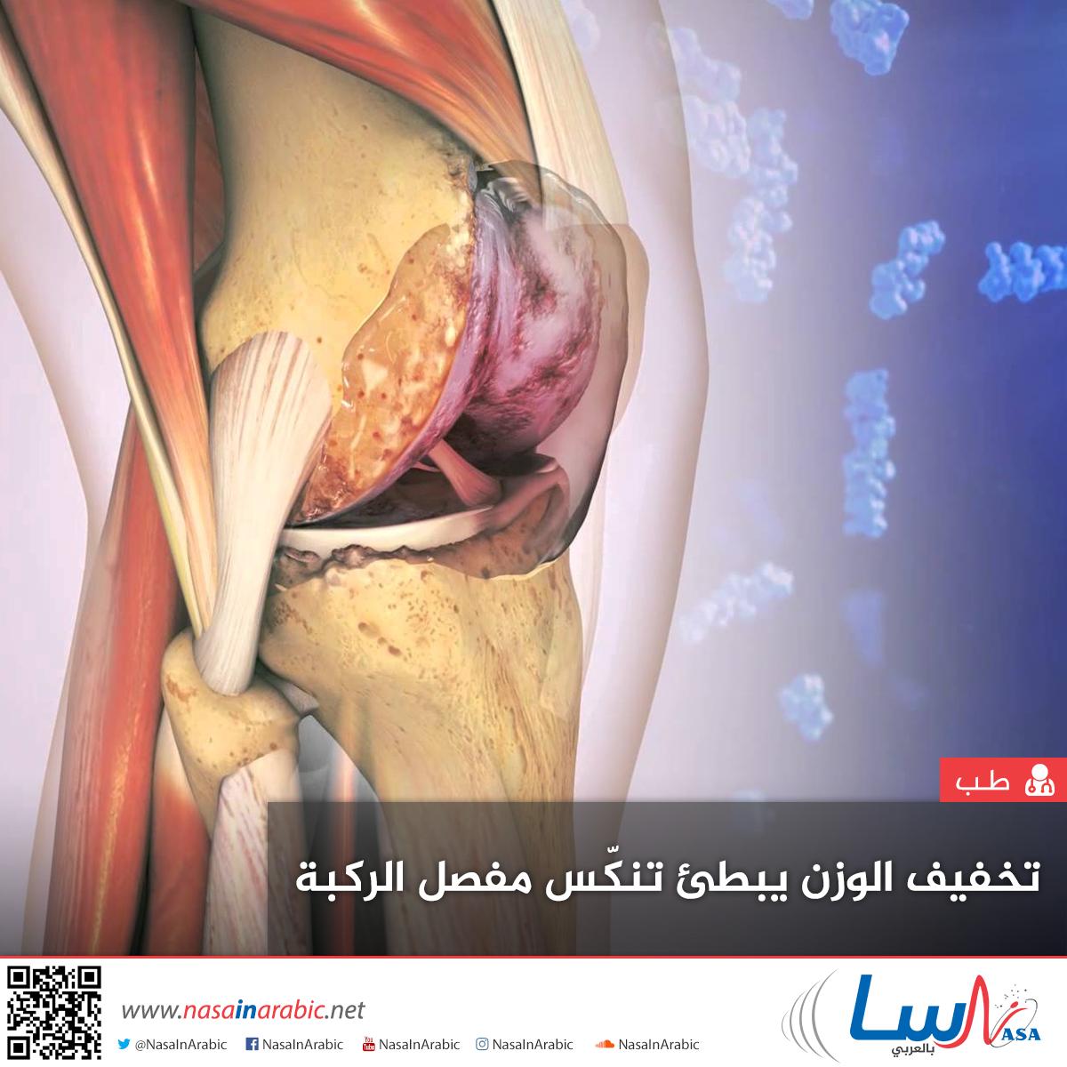 تخفيف الوزن يبطئ تنكس مفصل الركبة