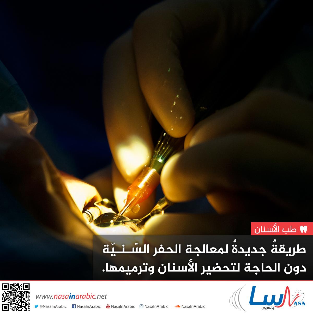 طريقة جديدة لمعالجة الحفر السنية دون الحاجة لتحضير الأسنان وترميمها