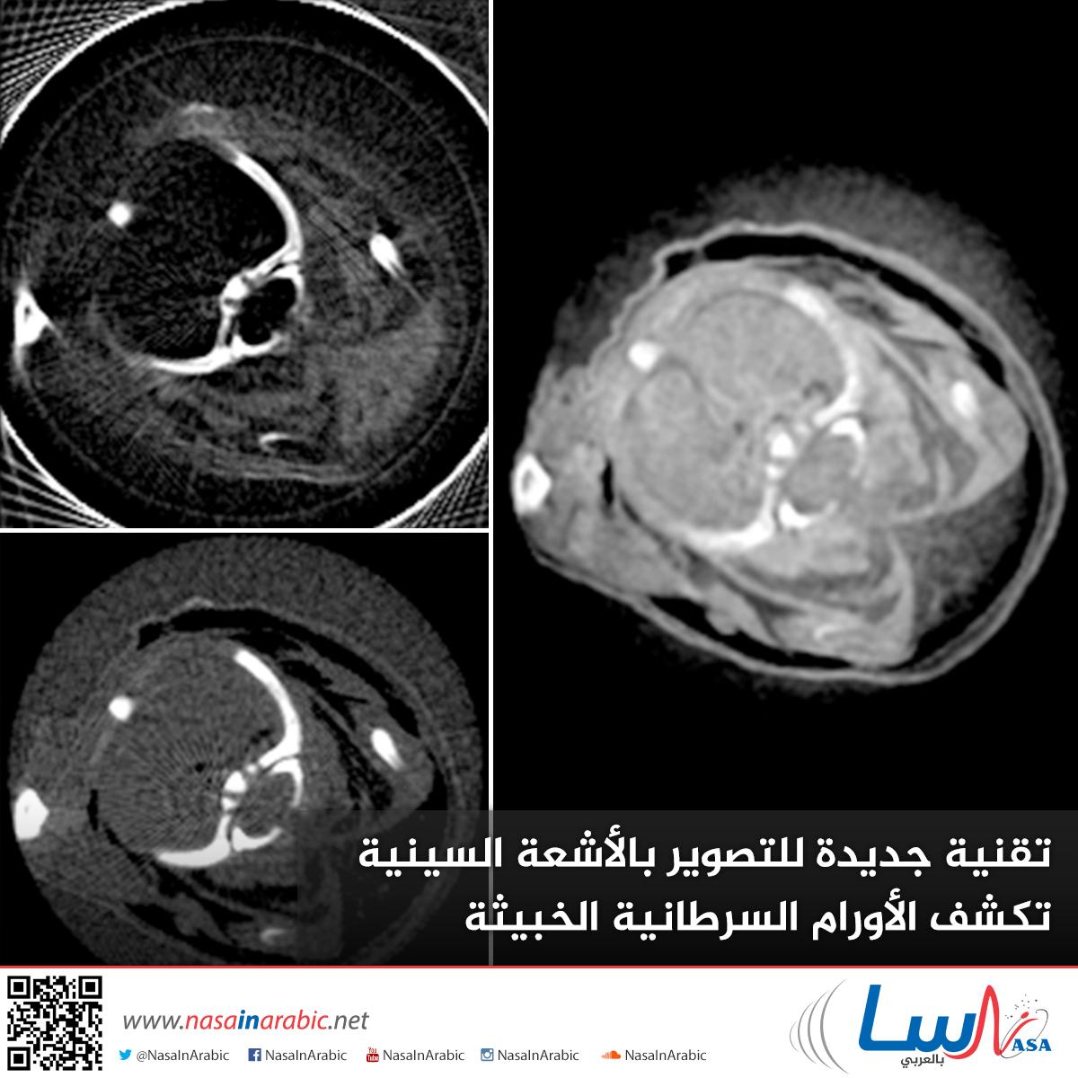تقنية جديدة للتصوير بالأشعة السينية تكشف الأورام السرطانية الخبيثة