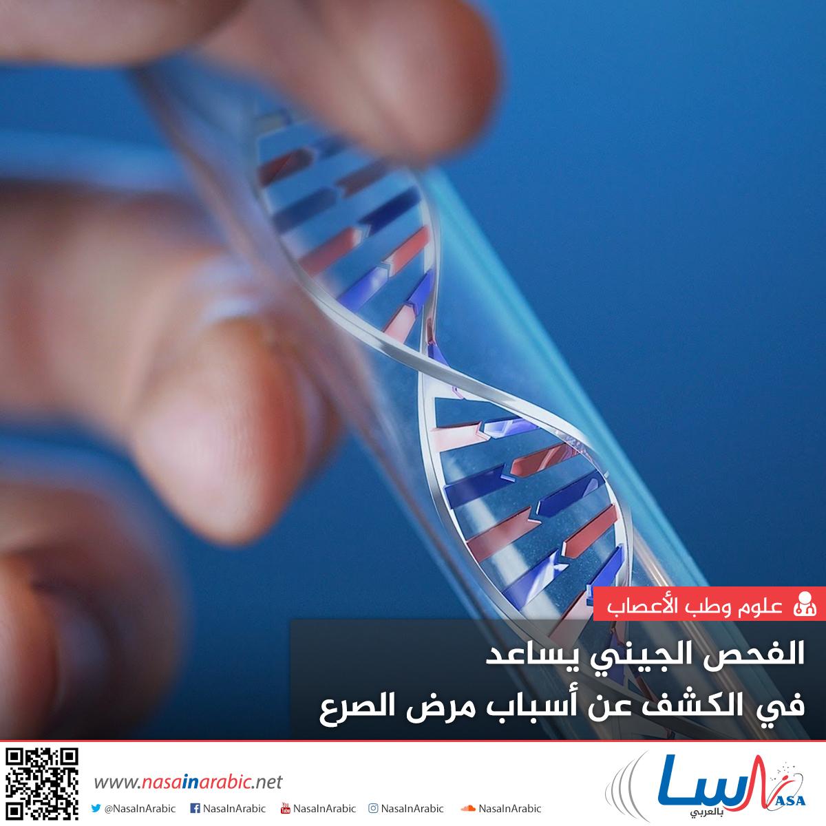 الفحص الجيني يساعد في الكشف عن أسباب مرض الصرع