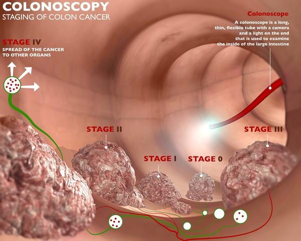 تنظير الكولون والمراحل المختلفة لسرطان الكولون