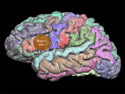 منطقة الدماغ المحاطة بالدائرة هي باحة بروكا Broca's area، المنطقة المسؤولة عن إنتاج النطق، وهي تتطور بشكلٍ غير طبيعي لدى الأشخاص المصابين بالتأتأة.