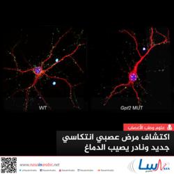 مرض عصبي انتكاسي جديد ونادر يصيب الدماغ