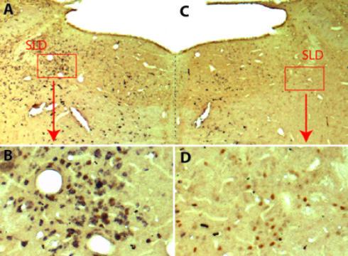 في الصورتين C و D: نشاهد الخلايا العصبية (باللون البني) عند فأر تجربة عالجه العلماء بالنواقل الفيروسية، ولكنها غير قادرة على إفراز مادة الغلوتامات glutamate (غياب اللون الأسود في الصورة) حقوق الصورة: Sara Valencia Garcia / Patrice Fort, (CNRS).