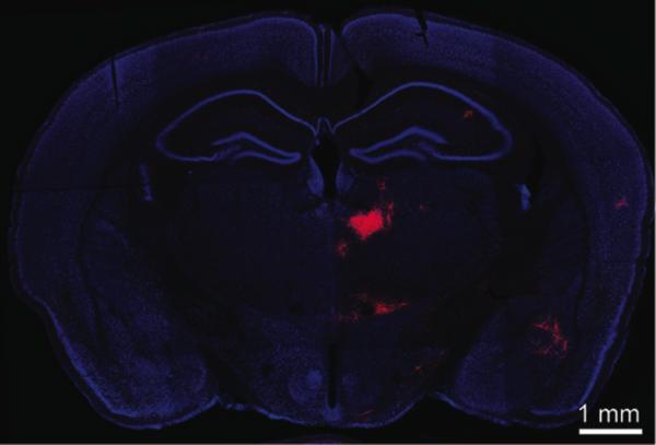 مقطع جبهي لدماغ فأر. حفز بولي وزملاؤه عصبونات PV المتوسطة الموجودة في القشرة الجبهية المقدمة الإنسية (mPFC) من أجل أن تنتج وصمة حمراء تنير أي نوع من العصبونات يمدها بالإدخال، الأمر الذي يشير إلى وجود وصلة مباشرة بينها وبين العصبونات الموسومة بالأحمر والمرئية في هذه الصورة، وهي موجودة في المهاد الظهراني الناصفي (أي في الجانب الخلفي الداخلي من المهاد). اكتشف فريق لي دائرة تثبيطية بين تينك المنطقتين من الدماغ، بحيث أنها لو تعطلت، قد تكون السبب في اضطرابات معرفية (إدراكية) كالفصام.