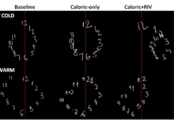 تفعيل الدماغ في الجانب الأيمن(في الأعلى) وفي الجانب الأيسر (في الأسفل)