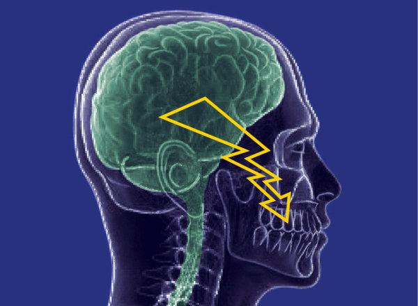 ألم العصب ثلاثي التوائم Trigeminal neuralgia: بريق أمل للمرضى بسبب مادة جديدة مختبرة. حقوق الصورة: Center of Dental Medicine; UZH}