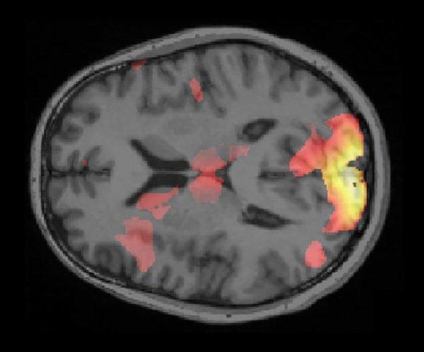 إحدى صور الدماغ بعد مسحه باستخدام تقنية الذكاء الصنعي Credit: Ai Koizumi