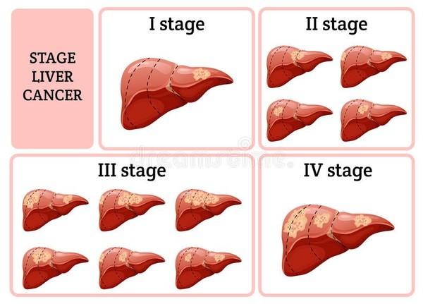 مراحل سرطان الكبد