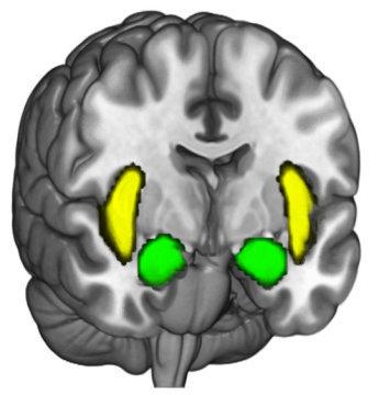 صورة النّواتان اللوزيتان (وهما المنطقتان لوزيتا الشكل اللتان تظهران في وسط الدماغ قريبًا من مقدمه) تميلان للنشاط عندما يرفض الناس تغيير معتقداتهم السياسية. حقوق الصورة: Photo/Courtesy of Brain and Creativity Institute at USC