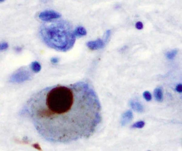 """وعند المرضى الذين يعانون من داء باركنسون، يُطوى بروتين AS بشكل خاطئ ليصبح بنية متراصة مسؤولة عن موت العصبونات المسؤولة عن إنتاج الدوبامين، والأسوأ من ذلك أن بروتين AS سيتصرف بشكل مشابه لأمراض البريونات (كمرض كروتزفيلد جاكوب أو """"جنون البقر"""").  ففي أمراض البريونات، سيحرض الطوي الخاطئ لأحد البروتينات طويًا خاطئًا للبروتينات الأخرى، بكلمات أخرى، سينتشر الطوي الخاطئ لدى البروتينات كتأثير الدومينو. مصدر الصورة NeuroscienceNews.com"""