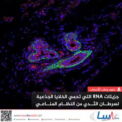 جزيئات RNA التي تحمي الخلايا الجذعية لسرطان الثدي من النظام المناعي