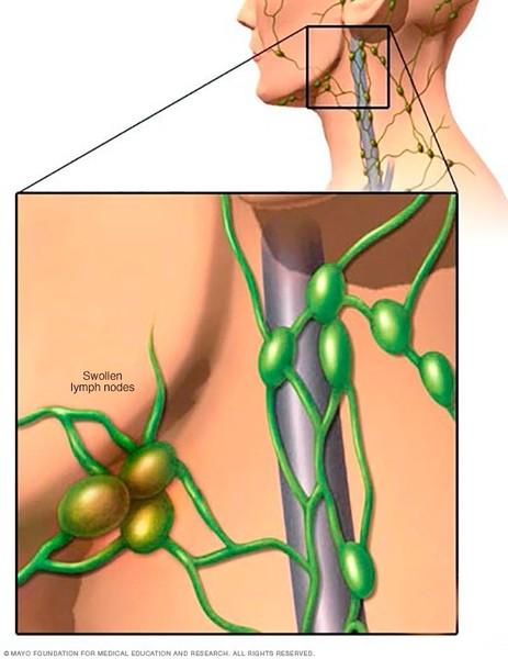 سرطان الجهاز اللمفاوي