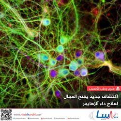 اكتشاف جديد يفتح المجال لعلاج داء آلزهايمر