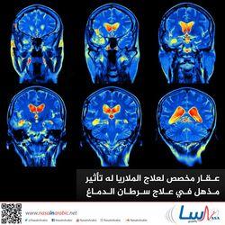 عقار مخصص لعلاج الملاريا له تأثير مذهل في علاج سرطان الدماغ