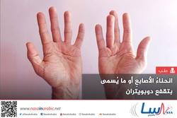 انحناءُ الأصابعِ أو ما يُسمى بتقفع دوبويتران