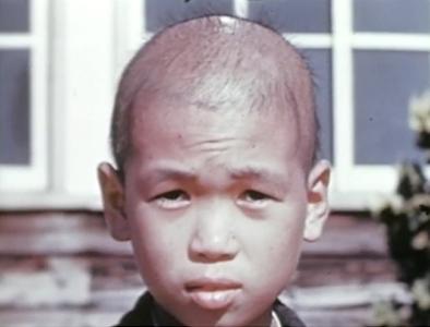 صورة من لجنة ضحايا القنبلة الذرية في 1945، لصبي تعرض للإشعاع في ناجازاكي. المصدر: المتحف الوطني للصحة والطب، معهد القوات المسلحة لعلم الأمراض.