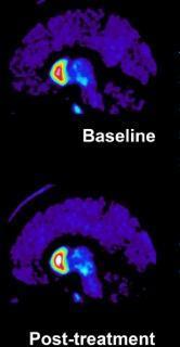 صورة PET تظهر إشارة ارتباط ناقل الدوبامين قبل العلاج، وقرابة 4 أشهر بعده. يشير اللون الأبيض إلى إشارة ذات شدة أكبر