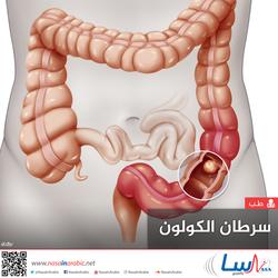 سرطان الكولون