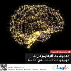 معالجة داء آلزهايمر بإزالة البروتينات السامة في الدماغ