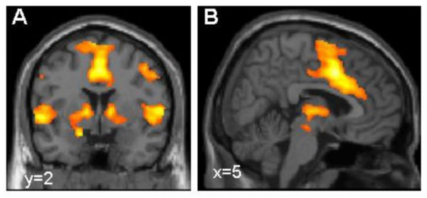 تفعيل شبكة الخوف في الدماغ، مستخدمين في إظهارها التصوير بالرنين المغناطيسي الوظيفي (fMRI). حقوق الصورة: Dr. Tina Lonsdorf, Systems Neuroscience UKE Hamburg