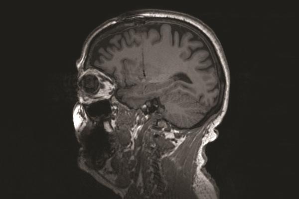 تحتوي كل كبسولة مزروعة في الدماغ على ما يقارب 1000 خلية خنزير – شركة تكنولوجيا الخلية الحية