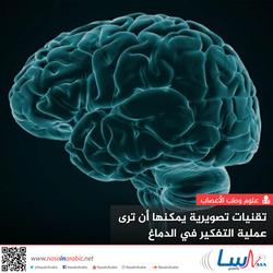 تقنيات تصويرية يمكنها أن ترى عملية التفكير في الدماغ