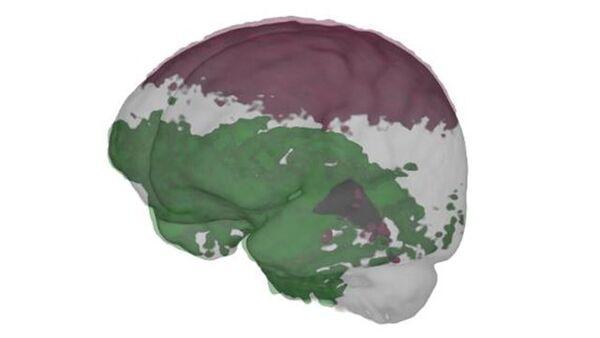 رسم توضيحي من دراسة دماغ رائد فضاء أجراها ستيفن جيلينغز من جامعة أنتويرب في أيلول/سبتمبر 2020. نشر جيلينجز وفريقه نتائج تؤكد النتائج السابقة حول تأثير رحلات الفضاء على توزيع السائل القحفي الشوكي حول الدماغ، وقد كانت المنطقة السفلية من الدماغ محاطة بمزيد من هذا السائل أكثر من المنطقة العلوية، ومن المحتمل أن تكون هذه علامة على أن رحلات الفضاء قد تسببت في تحرك الدماغ للأعلى في الجمجمة. حقوق الصورة: Steven Jillings/Ben Jeurissen/MRtrix3