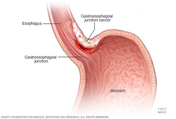 سرطان عند الوصل المعدي المريئي