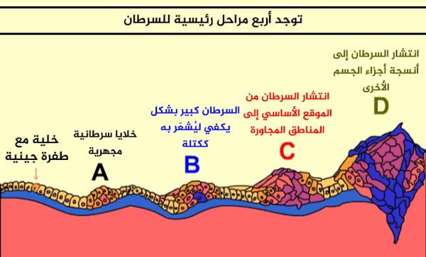 توجد أربع مراحل رئيسية للسرطان