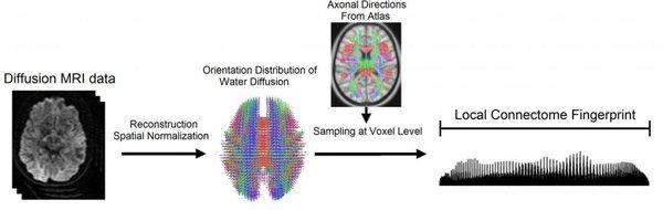 استخدم فريق بحثي من جامعة كارنيغي ميلون الرنين المغناطيسي الانتشاري لقياس جملة الوصلات المحلية عند 699 دماغاً من خمس مجموعات بيانية. إن جملة الوصلات المحلية هي الاتصالات من نقطة إلى نقطة على طول سبل المادة البيضاء في الدماغ، على عكس الاتصالات بين مناطق الدماغ. ولإيجاد بصمة مميزة للدماغ، أخذوا البيانات من الرنين المغناطيسي الانتشاري وأعادوا تركيبها لحساب توزع انتشار الماء على طول ألياف المادة البيضاء المخية. مصدر الصورة: جامعة Carnegie Mellon